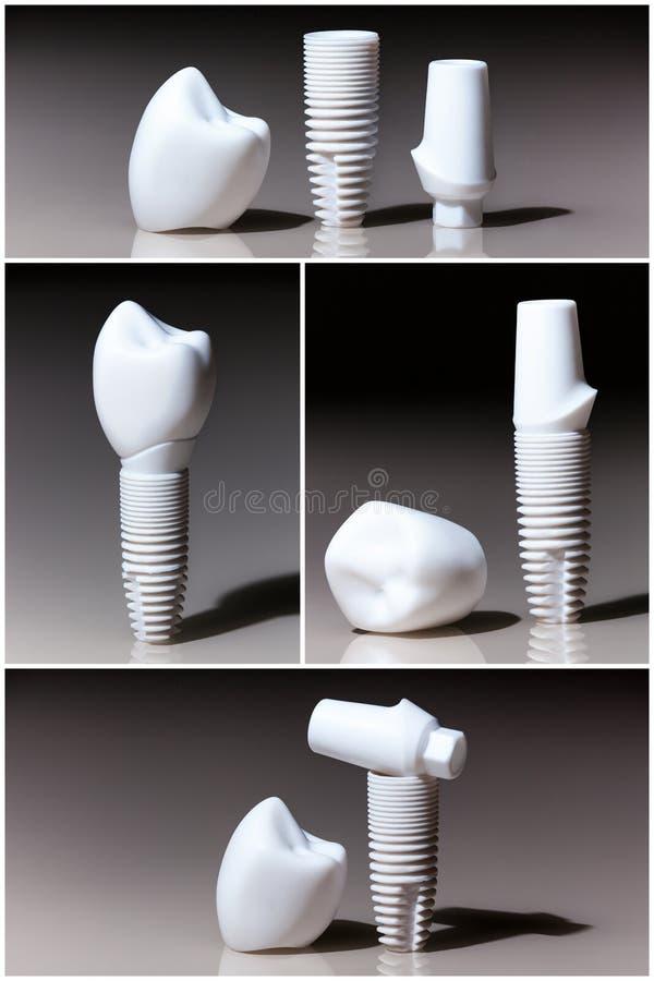 Modelos de dental, implantes imagens de stock