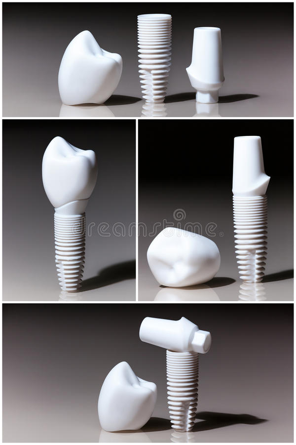 Models of dental, implants stock images