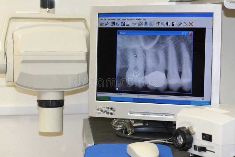 Download Modern dental x-ray stock image. Image of dental, prevention - 6857259