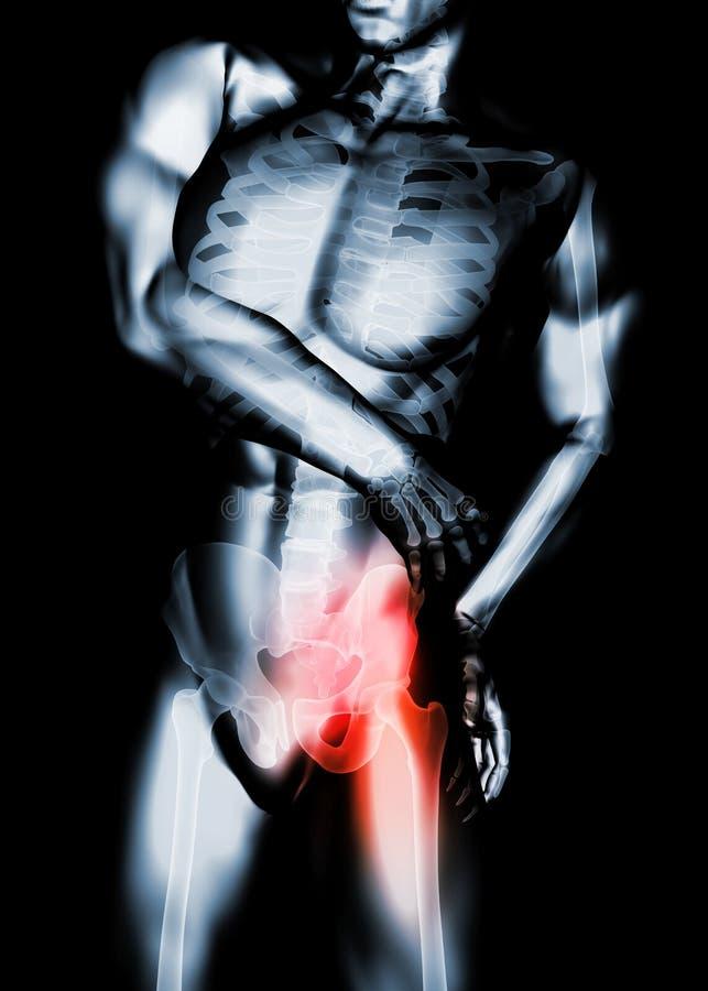 Modny bolesny zredukowany promieniowanie rentgenowskie, 3D ilustracja obrazy stock