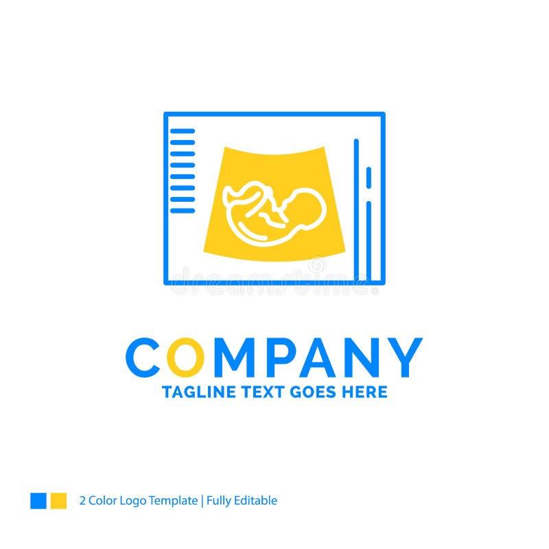 Moederschap, zwangerschap, sonogram, baby, ultrasone klank Blauwe Gele Bus royalty-vrije illustratie