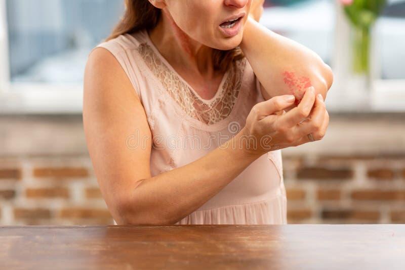 Moget hemmafruanseende nära tabellen och ha överilat på armbåge fotografering för bildbyråer
