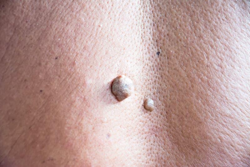Mol op de huid van het lichaam op mens royalty-vrije stock afbeeldingen