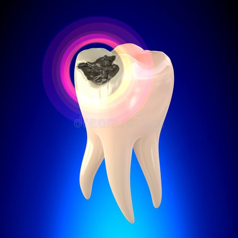Molaire de dent avec la carie dentaire illustration libre de droits