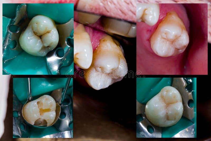 Molar dental treatment steps royalty free stock photos