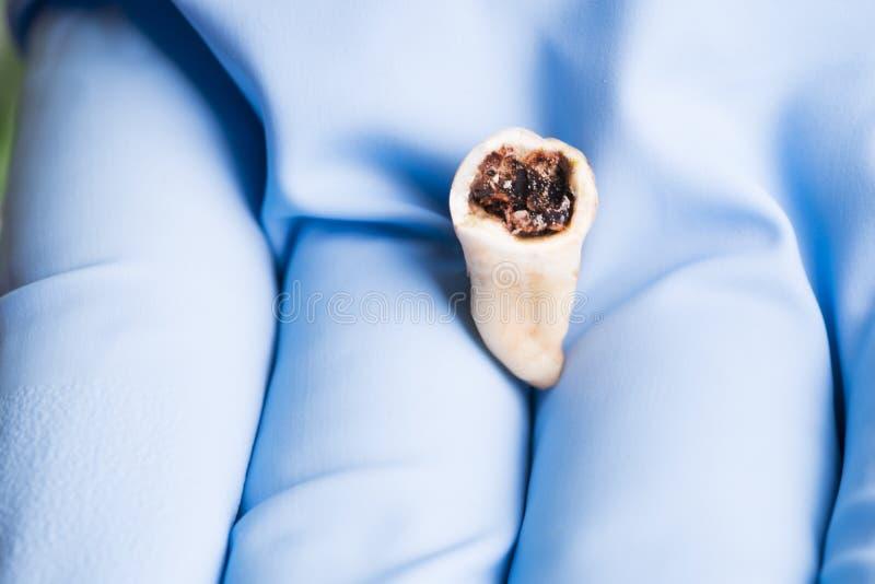 Molare estratto del rotter isolato in mano dei dentist's con il guanto medico blu fotografia stock