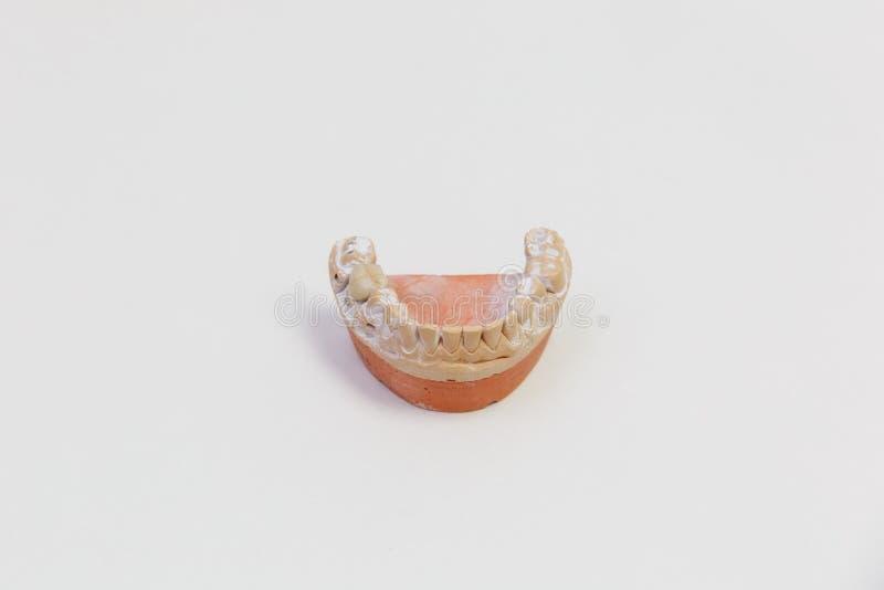 Molde de los dientes aislados en el fondo blanco Dentadura, cierre para arriba foto de archivo