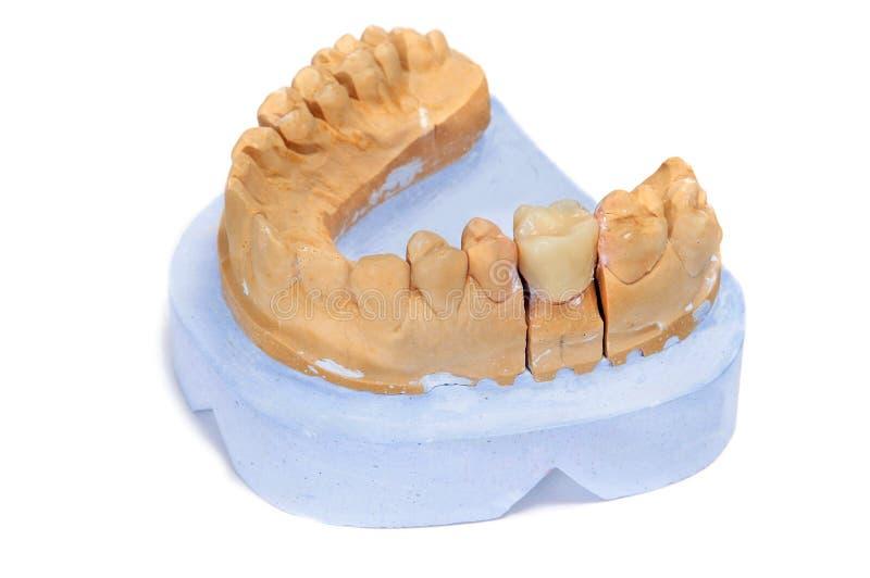 Molde dental fotografia de stock
