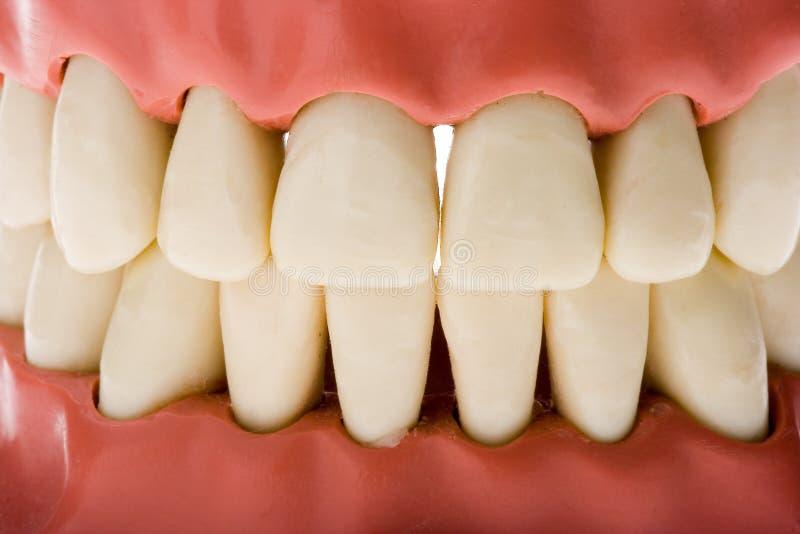 Molde dental 2 imagen de archivo libre de regalías