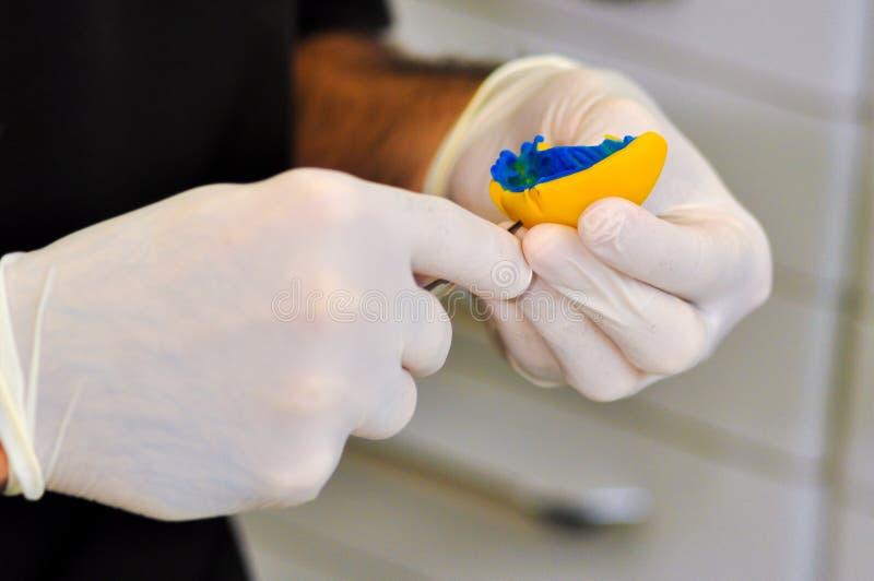 Molde dental del diente del ` s del dentista fotografía de archivo