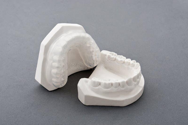 Molde do emplastro dental fotografia de stock royalty free