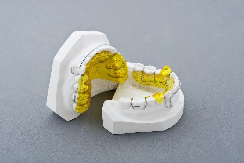 Molde do emplastro dental imagem de stock royalty free