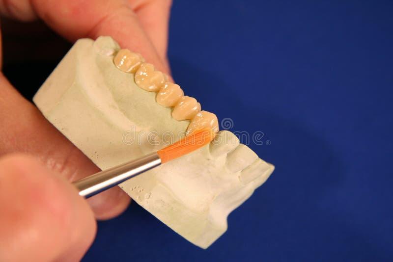 Molde oral de los dientes de la salud foto de archivo