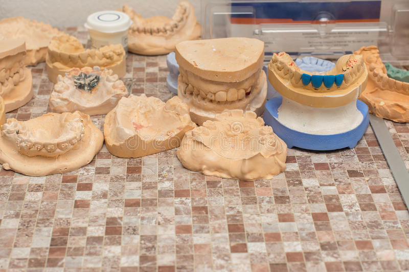 Molds of teeth stock photo
