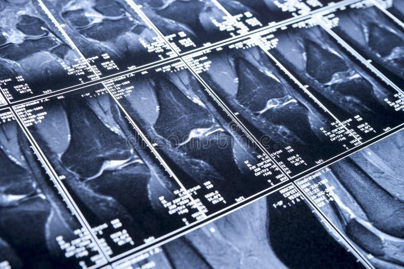 Mon genou MRI - dommages des ligaments cruciformes photo libre de droits