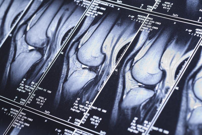 Mon genou MRI - dommages des ligaments cruciformes image libre de droits
