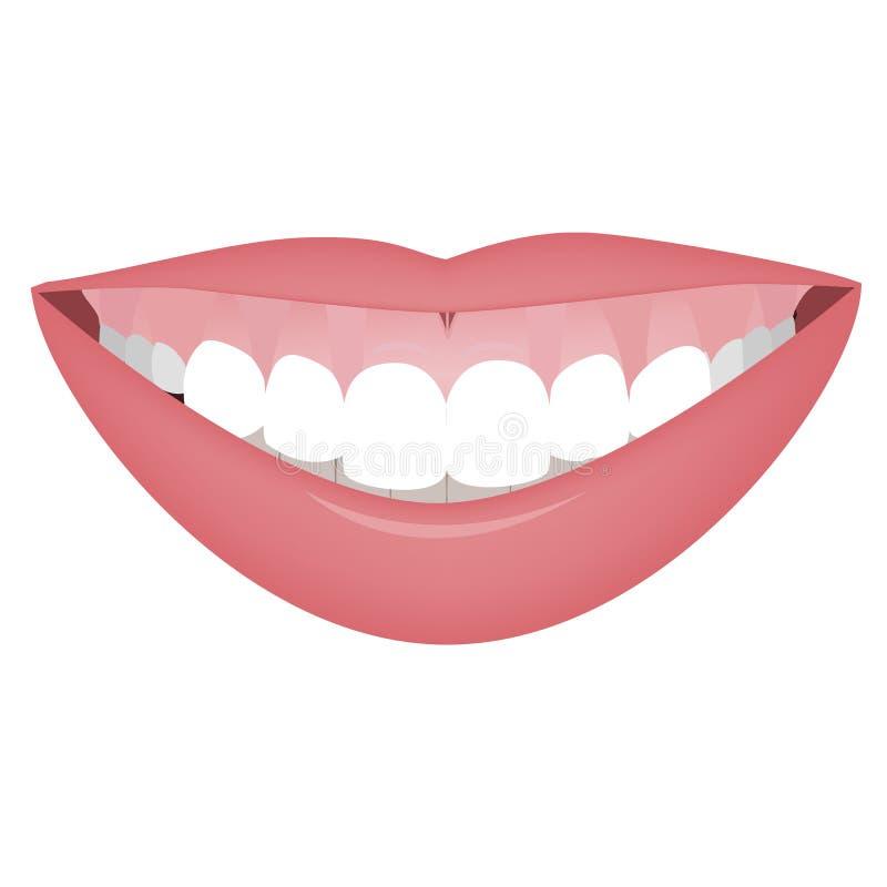 Mond met een hoge glimlachlijn of een kleverige glimlach vóór het schoonheidsmiddel, orthotropics of de orthotropicscorrectie Vec royalty-vrije illustratie