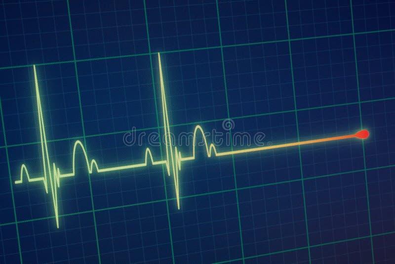 Moniteur d'ECG/électrocardiogramme photographie stock libre de droits