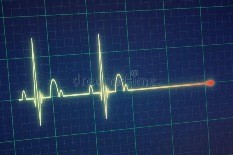 Moniteur d'ECG/électrocardiogramme photos stock