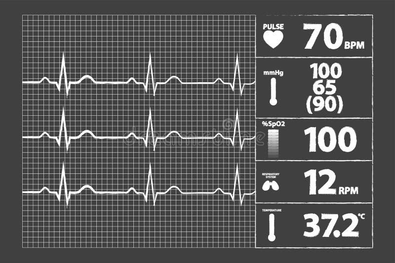 Moniteur moderne d'électrocardiogramme illustration de vecteur