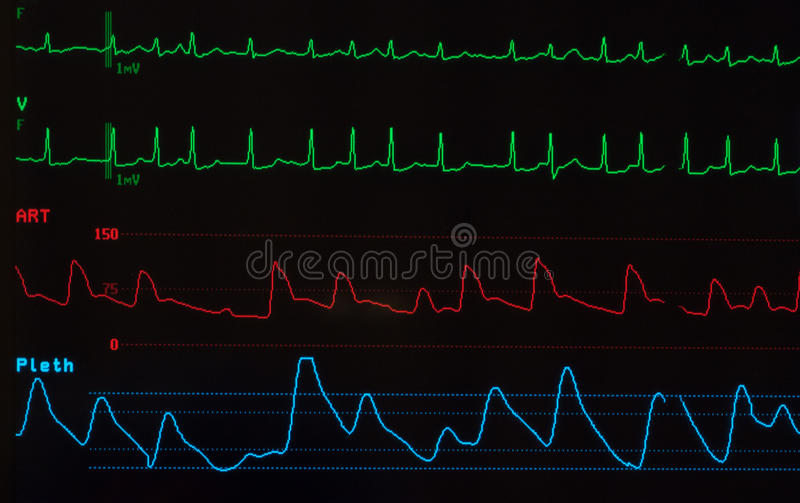 Monitor with Atrial Fibrillation. Close up a monitor screen showing atrial fibrillation as the heart rhythm, the arterial blood pressure and the oxygen royalty free stock images