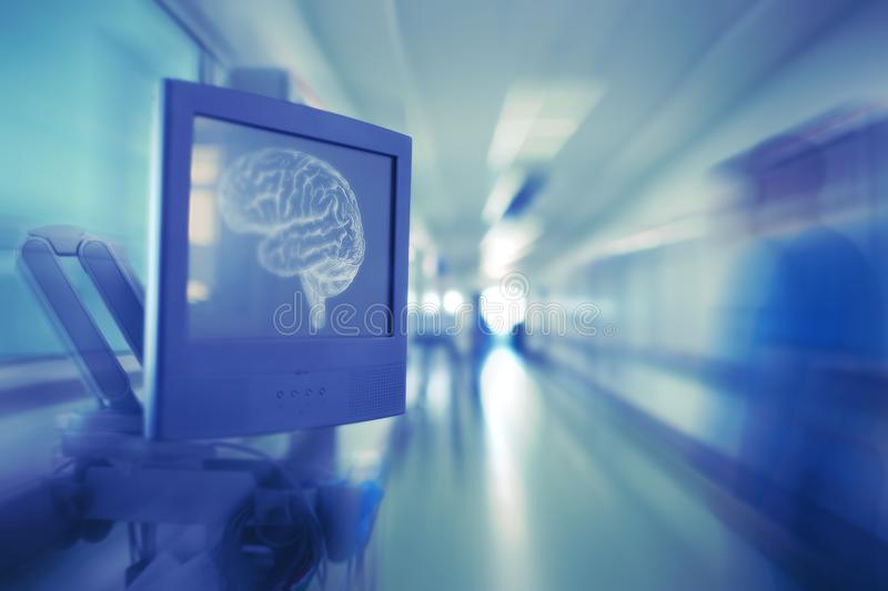 Monitor with brain image and blurred silhouette of doctor in the stock photo