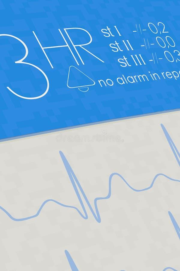 Monitor de ECG con la función del informe del corazón ilustración del vector