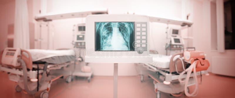 Monitor de la radiografía en sala panorámica de ICU imagenes de archivo