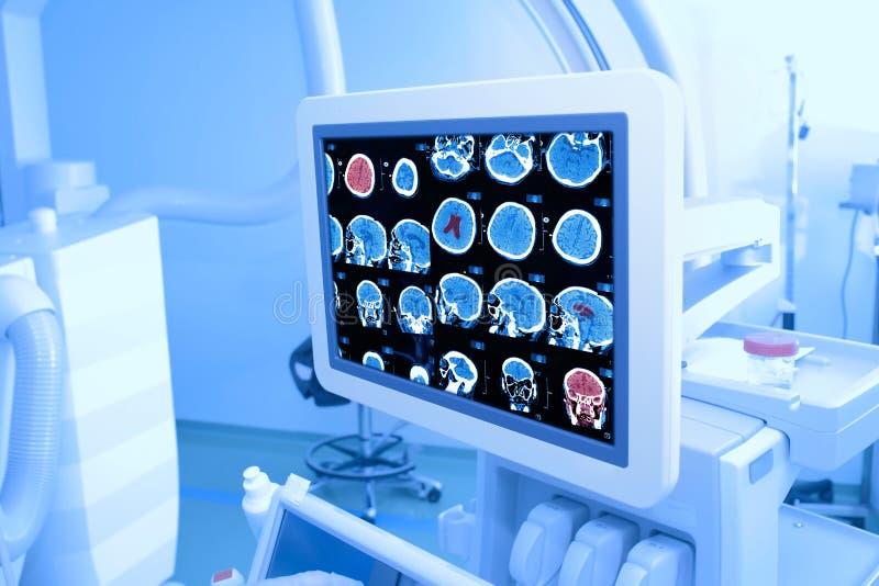 Monitor dei raggi x nell'ospedale immagini stock libere da diritti