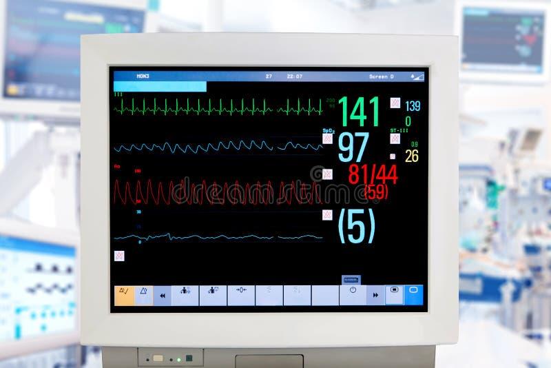 Monitor del electrocardiograma fotografía de archivo libre de regalías