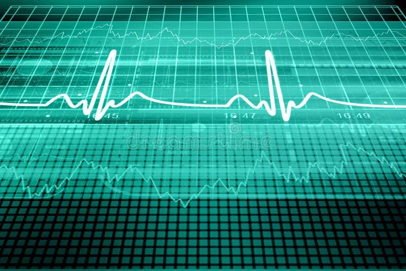 Monitor del golpe de corazón ilustración del vector