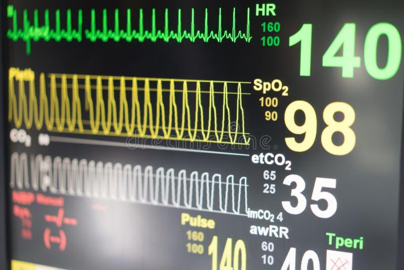Monitor del ritmo cardíaco de un indicador de presión en un hospital foto de archivo libre de regalías