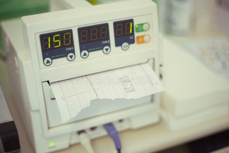 Monitor fetale di battito cardiaco, cardiotocography fotografia stock