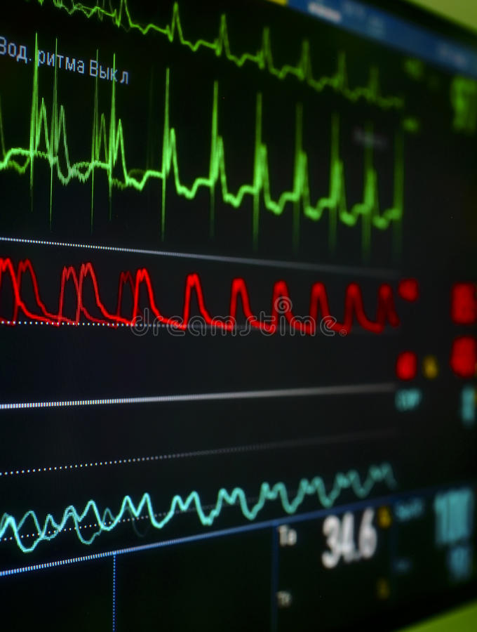 Monitor in the ICU. royalty free stock image