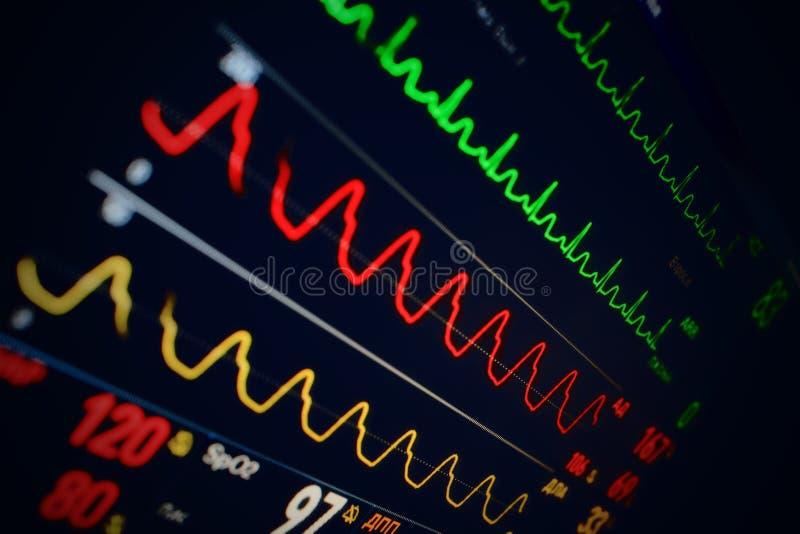 Monitor médico con diversos índices imagen de archivo