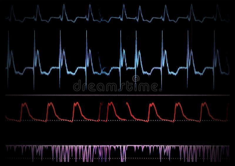 Monitor médico de la pantalla. stock de ilustración