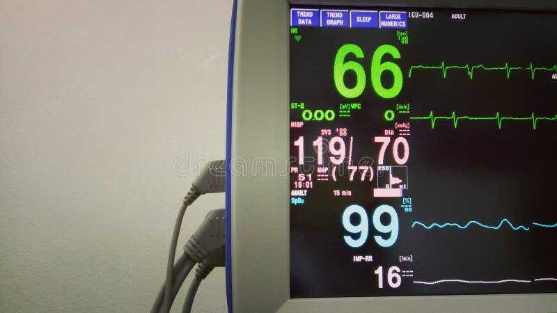Monitor médico moderno con ECG en la clínica fotos de archivo libres de regalías
