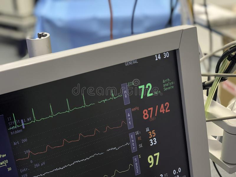 Monitor in operating theatre to measure vital signs of a patient undergoing surgery. Monitor in operating theatre to measure vital signs of a patient undergoing royalty free stock photo
