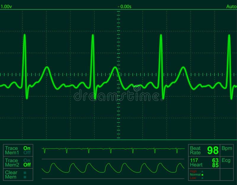 monitor serca ekranu royalty ilustracja