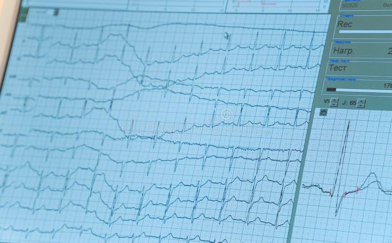 Monitor total da estação das enfermeiras na unidade de cuidados intensivos Tela de monitor de ECG imagem de stock royalty free
