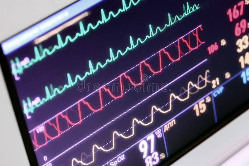 Monitoração do paciente no ICU imagens de stock