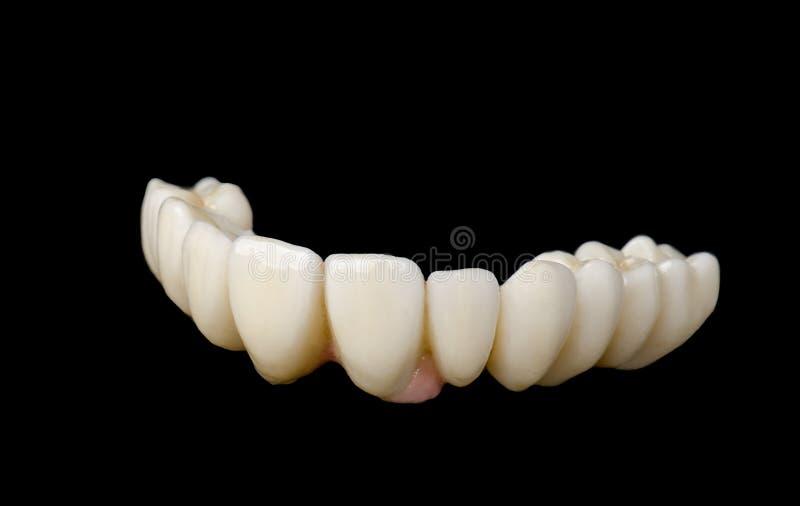 Monolitisk zirkoniumdioxid royaltyfri fotografi