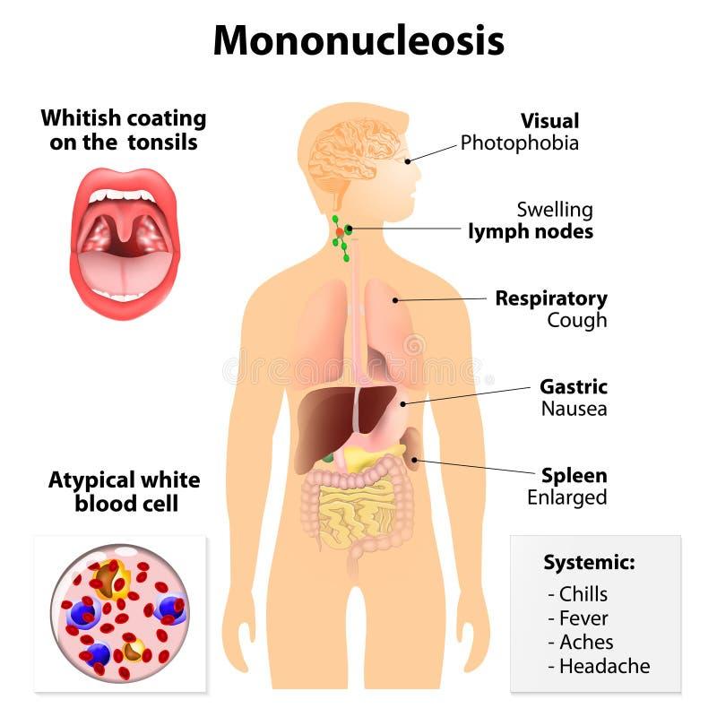 Mononucleose infecciosa ilustração stock