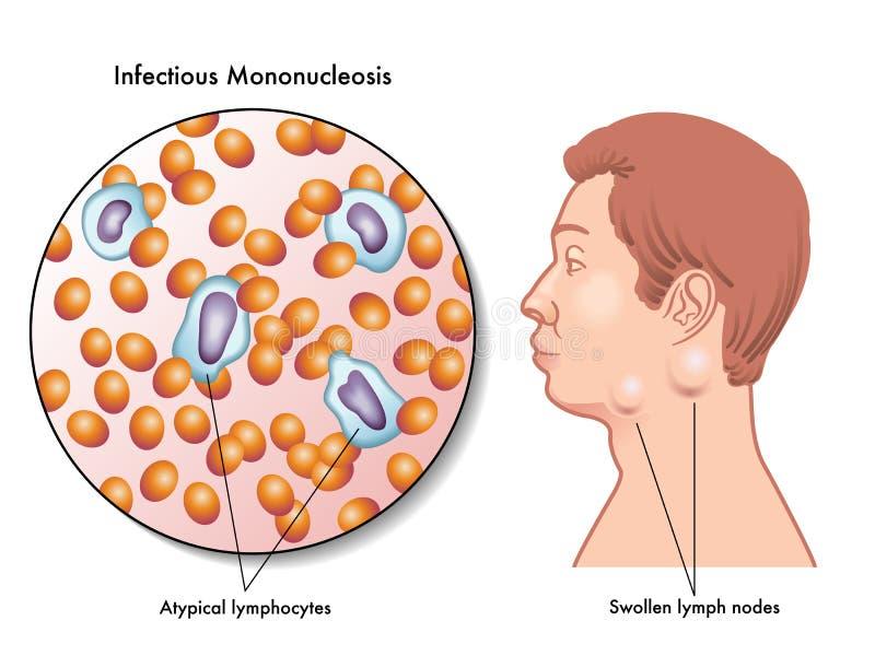 mononucleosis ilustração royalty free