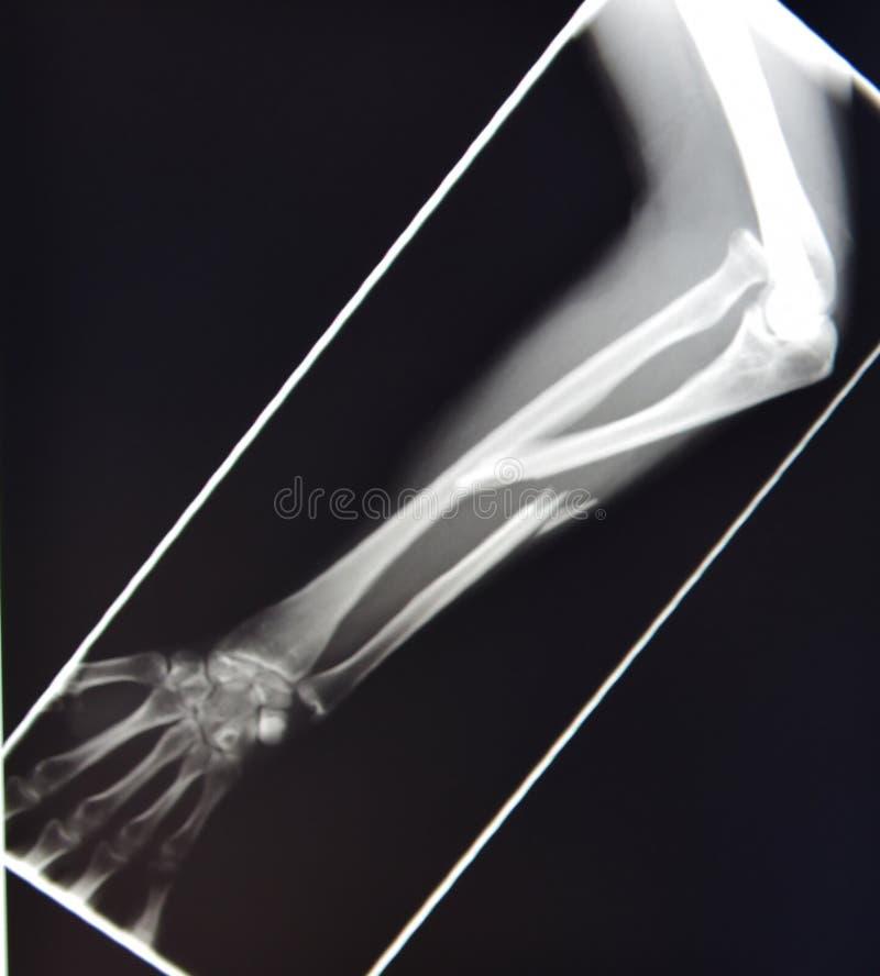Monteggia Bruch der oberen Extremität des Röntgenstrahls stockfotografie