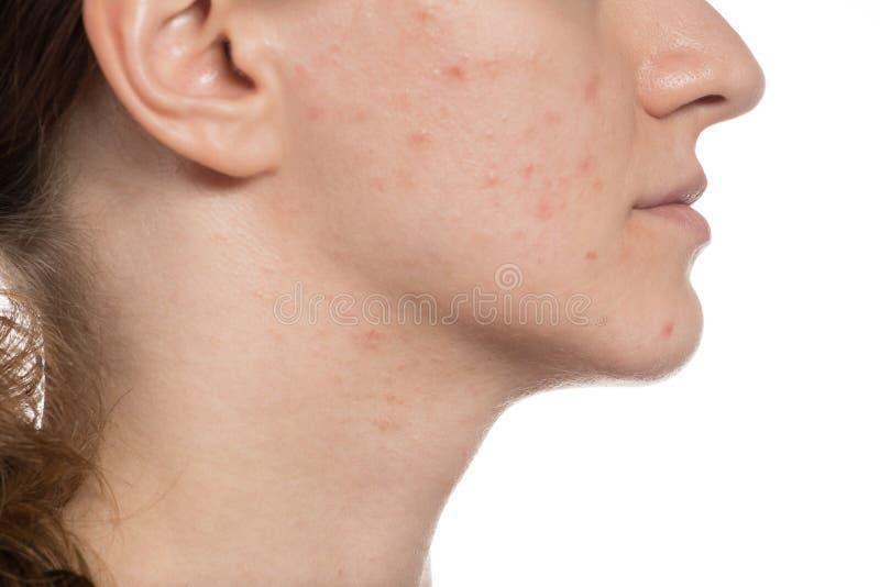 Mooi jong meisje met rode en witte acne op haar gezicht voordien stock foto's