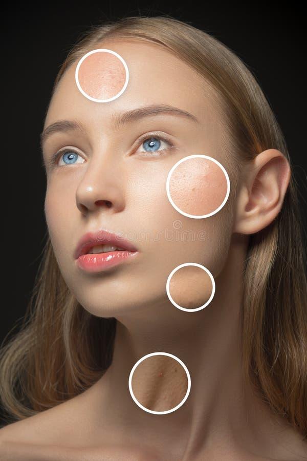 Mooi meisje met diverse types van huid stock afbeeldingen
