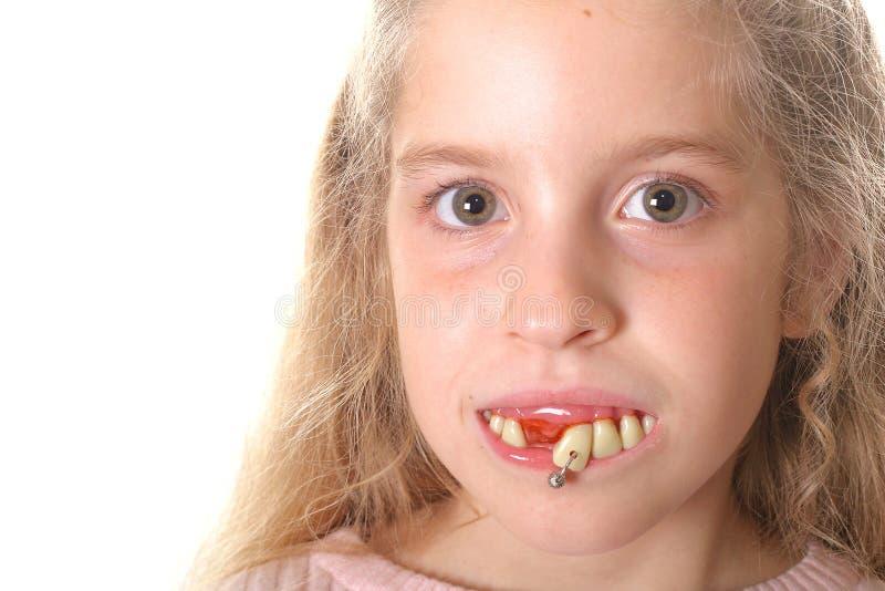 Mooi meisje met lelijke tanden (exemplaar ruimtelinkerzijde) royalty-vrije stock afbeelding