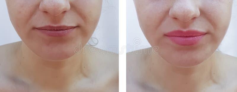 Mooie de lippenuitbreiding van het meisjesgezicht before and after procedureseffect stock foto