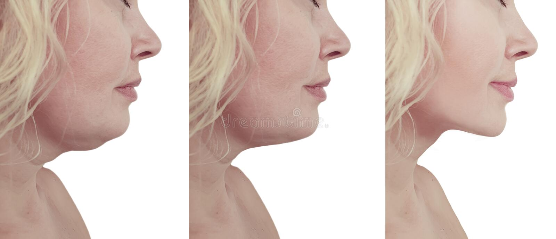 Mooie doorhangende de verjongingscollage van de vrouwenonderkin before and after liposuctionprocedures stock afbeeldingen